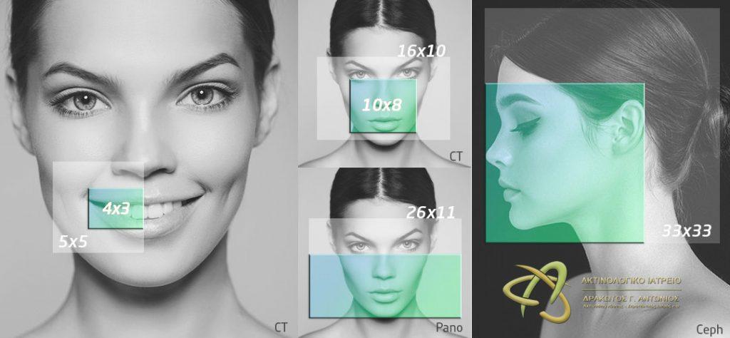 Εξετάσεις 3D CBCT στη Λάρισα | Αξονική Δοντιών στη Λάρισα με χαμηλή δόση ακτινοβολίας (έως -80%) 3D CBCT | Αξονική Δοντιών στη Λάρισα με χαμηλή δόση ακτινοβολίας (έως -80%) | 3D ακτινογραφία δοντιών στη Λάρισα | Drakotos-Antonios_CBCT_Promax_3D_imgaging, ΔΡΑΚΩΤΟΣ Γ. ΑΝΤΩΝΙΟΣ - Ακτινοδιαγνώστης – Στρατιωτικός Ιατρός ε.α Ακτινολόγος Λάρισα. ακτινολόγος λαρισα. Ακτινολογικό ιατρείο λάρισα. Aktinologo larisa. Ακτινογραφία Λάρισα. Drakotos-Antonios, aktinografia larisa, aktinologos larisa. Ακτινολόγος λάρισα, οικονομική ακτινογραφία, Ακτινολογικό Εργαστήριο στη Λάρισα, ακτινολογοι στη Λάρισα. Δρακωτός Γ. Αντώνιος. ΜΑΡΙΝΟΥ ΑΝΤΥΠΑ 2 κ ΚΟΥΜΑ, Κεντρική Πλατεία, Λάρισα. Τηλ.(2410) 258 000. Ακτινογραφία με απόλυτη ακρίβεια και μειωμένη έκθεση σε κίνδυνο. Planmeca ProMax 3D. Αξονική τομογραφία οδόντων κωνικής δέσμης CBCT. Έγχρωμα doppler υπερηχογραφήματα οσχέου. Έλεγχος fistula. Αξονική τομογραφία οδόντων κωνικής δέσμης CBCT. Ακτινογραφία ολόκληρης της άνω και κάτω γνάθου με μία μόνο λήψη. Ακτινογραφία Ultra Low Dose με ιδιαίτερα χαμηλή δόση ακτινοβολίας μειωμένη κατά 80% μικρότερη της τυπικής πανοραμικής. Ενδοοδοντολογία με ιδιαίτερα υψηλή ανάλυσηγια. Προσομοίωση τοποθέτησης εμφυτεύματος. Aktinografia larisa, Drakotos-Antonios, Δρακωτός Γ. Αντώνιος. Aktinologos larisa, aktinologos larissa, ακτινολόγος λάρισα, ακτινολόγος λάρισσα, οικονομική ακτινογραφία. Ακτινολογικό Εργαστήριο στη Λάρισα, ακτινολόγοι στη Λάρισα. Γιατροί ακτινολόγοι Λάρισα, ιατροί ακτινολόγοι Λάρισα. Υπερηχογραφήματα Λάρισα, Υπερηχογράφημα Λάρισα, giatros larisa, γιατρός Λάρισα.