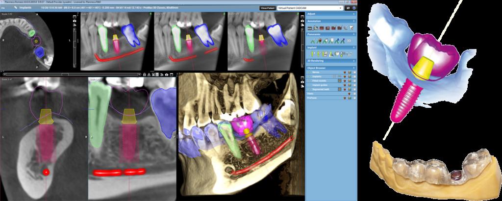 Αξονική Δοντιών στη Λάρισα με χαμηλή δόση ακτινοβολίας (έως -80%) | 3D ακτινογραφία δοντιών στη Λάρισα | Εξελιγμένο πρόγραμμα Planmeca Romexis 4.5 Παροχή του νέου εξελιγμένου προγράμματος Planmeca Romexis 4.5 το οποίο είναι κοινό σε όλα τα προγράμματα των υποειδικοτήτων της οδοντιατρικής και όλα τα μηχανήματα της εταιρίας. | Drakotos-Antonios_CBCT_Promax_3D_imgaging, ΔΡΑΚΩΤΟΣ Γ. ΑΝΤΩΝΙΟΣ - Ακτινοδιαγνώστης – Στρατιωτικός Ιατρός ε.α Ακτινολόγος Λάρισα. ακτινολόγος λαρισα. Ακτινολογικό ιατρείο λάρισα. Aktinologo larisa. Ακτινογραφία Λάρισα. Drakotos-Antonios, aktinografia larisa, aktinologos larisa. Ακτινολόγος λάρισα, οικονομική ακτινογραφία, Ακτινολογικό Εργαστήριο στη Λάρισα, ακτινολογοι στη Λάρισα. Δρακωτός Γ. Αντώνιος. ΜΑΡΙΝΟΥ ΑΝΤΥΠΑ 2 κ ΚΟΥΜΑ, Κεντρική Πλατεία, Λάρισα. Τηλ.(2410) 258 000. Ακτινογραφία με απόλυτη ακρίβεια και μειωμένη έκθεση σε κίνδυνο. Planmeca ProMax 3D. Αξονική τομογραφία οδόντων κωνικής δέσμης CBCT. Έγχρωμα doppler υπερηχογραφήματα οσχέου. Έλεγχος fistula. Αξονική τομογραφία οδόντων κωνικής δέσμης CBCT. Ακτινογραφία ολόκληρης της άνω και κάτω γνάθου με μία μόνο λήψη. Ακτινογραφία Ultra Low Dose με ιδιαίτερα χαμηλή δόση ακτινοβολίας μειωμένη κατά 80% μικρότερη της τυπικής πανοραμικής. Ενδοοδοντολογία με ιδιαίτερα υψηλή ανάλυσηγια. Προσομοίωση τοποθέτησης εμφυτεύματος. Aktinografia larisa, Drakotos-Antonios, Δρακωτός Γ. Αντώνιος. Aktinologos larisa, aktinologos larissa, ακτινολόγος λάρισα, ακτινολόγος λάρισσα, οικονομική ακτινογραφία. Ακτινολογικό Εργαστήριο στη Λάρισα, ακτινολόγοι στη Λάρισα. Γιατροί ακτινολόγοι Λάρισα, ιατροί ακτινολόγοι Λάρισα. Υπερηχογραφήματα Λάρισα, Υπερηχογράφημα Λάρισα, giatros larisa, γιατρός Λάρισα.